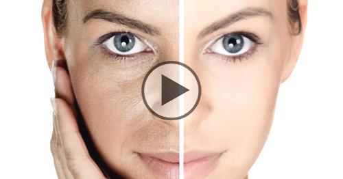 Pori dilatati, lo strepitoso rimedio indiano per rigenerare la pelle in 3 giorni