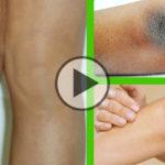 Antico rimedio naturale indiano per schiarire ginocchia o gomiti neri/scuri