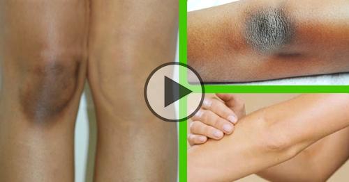 rimedio naturale per gomiti e ginocchia neri