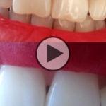 5 minuti per sbiancare i denti con il carbone vegetale